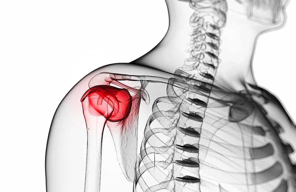 Shoulder Rehabilitation for post surgery in Navi Mumbai